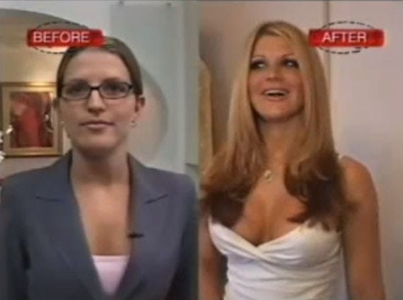 Celebrity cosmetic surgeries gone wrong